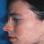 1 acne mod s tock photo