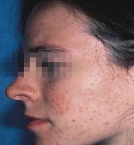 ovace facial wash