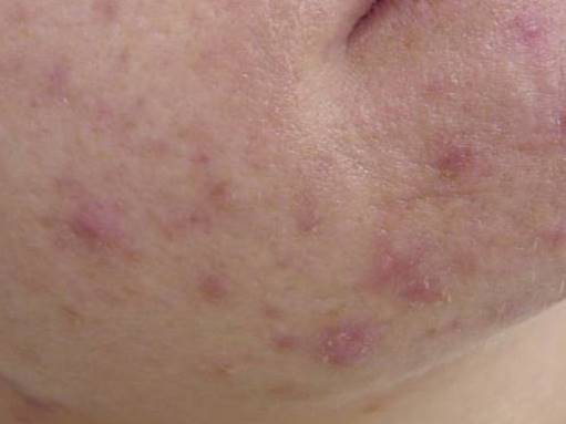 1 Use Red Acne Chin Female Age 20 S The Skin And