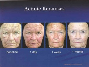 Actinic Keratosis The Skin Center Board Certified