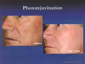 Photodynamic Therapy (PDT) - The Skin Center: Board