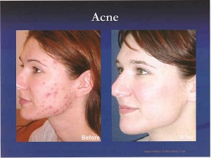 acne acne acne adult back blue light testosterone therapy