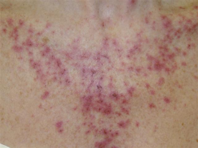 scabies on chest #11