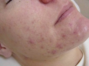 ACNE - The Skin Center: Board-Certified Dermatologists ...