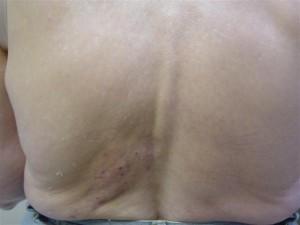 Notalgia mid Back
