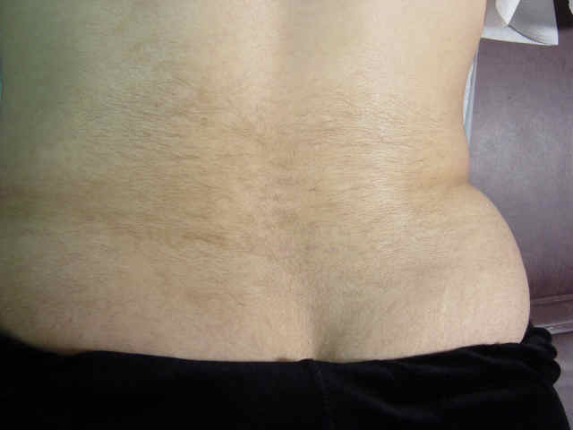 Low Back Hair Lasr The Skin And Wellness Center