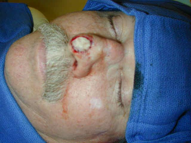 folliculitis nose