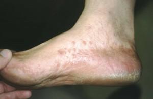 Cracked Heels:Best OC Dermatologist Dr. Cole Dr. Alai Dr