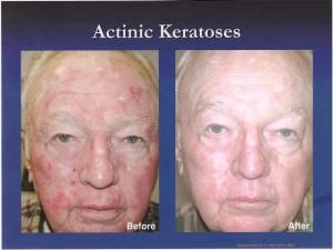 Blue Light - The Skin Center: Board-Certified Dermatologists