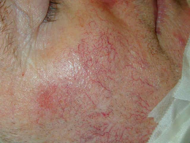 Telangiec Pre The Skin And Wellness Center